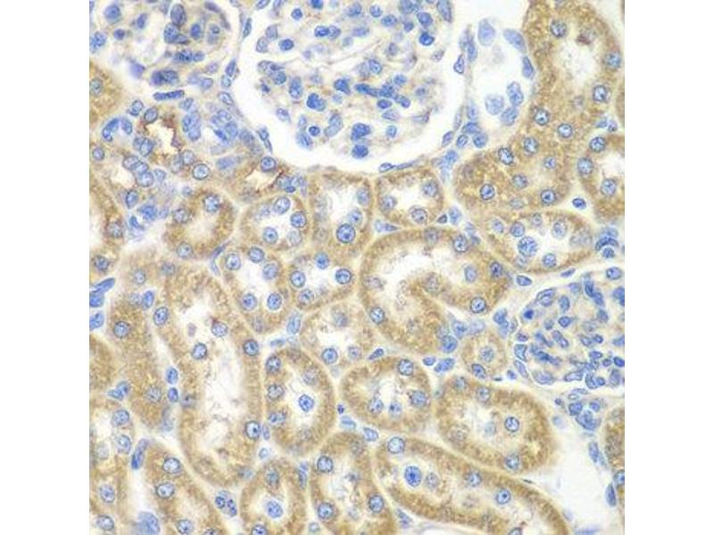 Immunohistochemistry (IHC) image for anti-Guanine Nucleotide Binding Protein (G Protein), alpha Inhibiting Activity Polypeptide 2 (GNAI2) antibody (ABIN2736843)