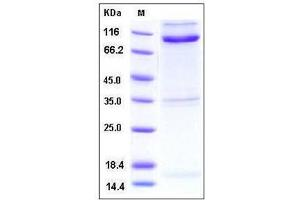 Image no. 1 for Reticulon 4 Receptor (RTN4R) (AA 1-447), (Mature) (Active) protein (Fc Tag,His tag) (ABIN2216041)