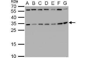 Image no. 4 for anti-Ribosomal Protein S3A (RPS3A) (Center) antibody (ABIN2856016)