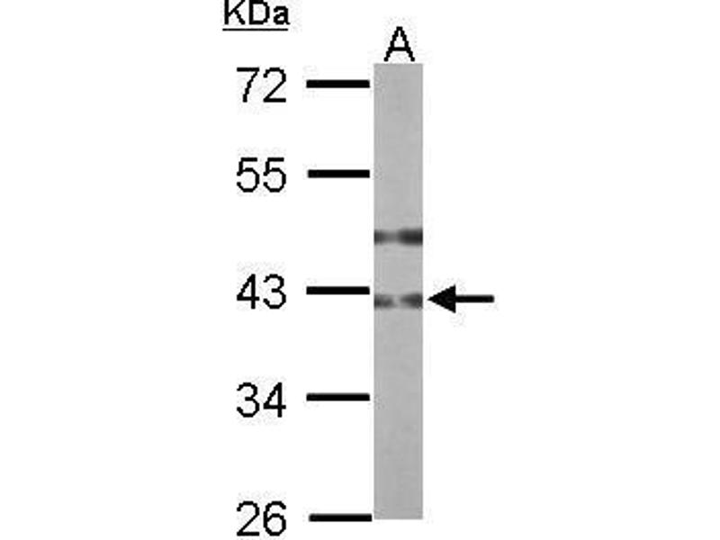 Image no. 3 for anti-UDP-GlcNAc:betaGal beta-1,3-N-Acetylglucosaminyltransferase 3 (B3GNT3) (Center) antibody (ABIN2856643)