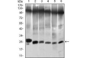 Western Blotting (WB) image for anti-Twist Homolog 1 (Drosophila) (TWIST1) (AA 9-74) antibody (ABIN1724845)