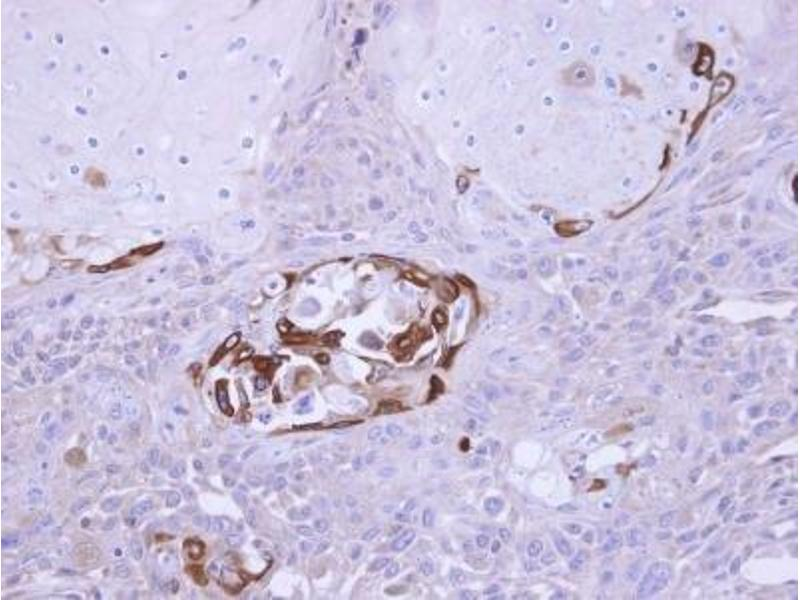 Immunohistochemistry (Paraffin-embedded Sections) (IHC (p)) image for anti-Suppressor of Cytokine Signaling 5 (SOCS5) (N-Term) antibody (ABIN441033)