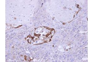 Immunohistochemistry (Paraffin-embedded Sections) (IHC (p)) image for anti-SOCS5 antibody (Suppressor of Cytokine Signaling 5) (ABIN441033)