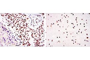 Immunohistochemistry (IHC) image for anti-Protein Kinase, DNA-Activated, Catalytic Polypeptide (PRKDC) antibody (ABIN969366)