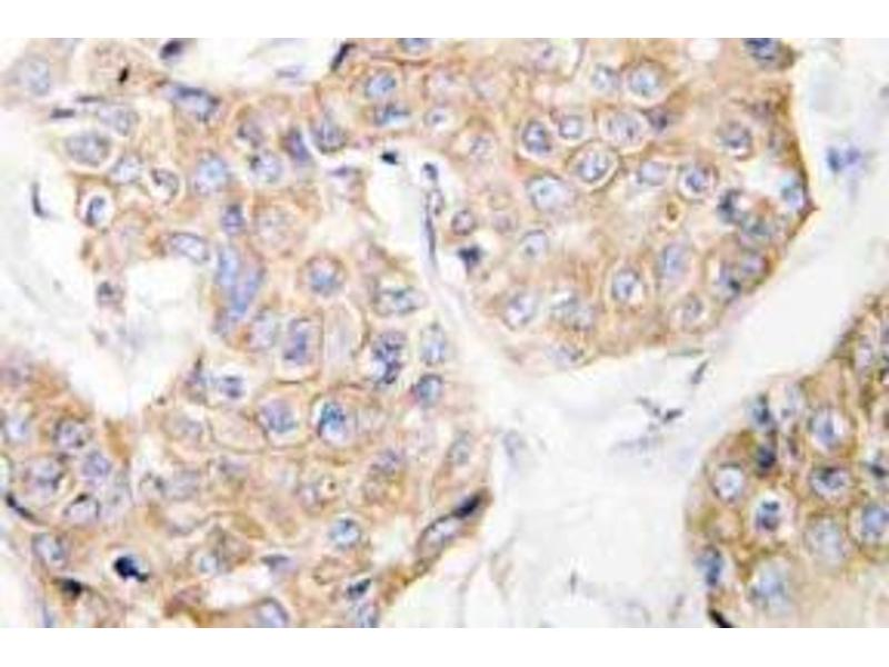 Immunohistochemistry (Paraffin-embedded Sections) (IHC (p)) image for anti-IL13 Receptor alpha 1 antibody (Interleukin 13 Receptor, alpha 1) (ABIN498953)