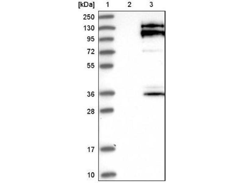 Western Blotting (WB) image for anti-Sperm Associated Antigen 5 (SPAG5) antibody (ABIN4281929)