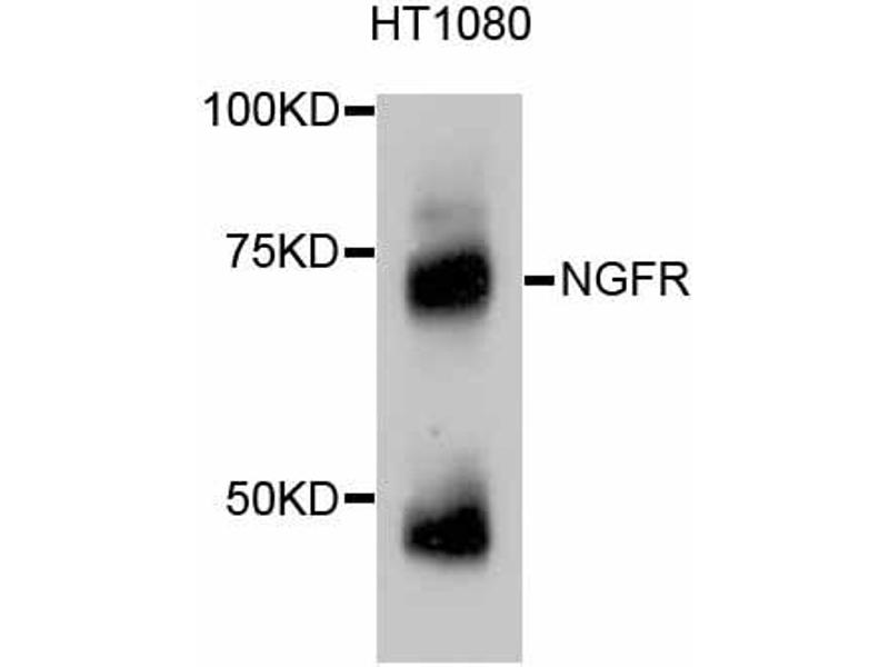 Western Blotting (WB) image for anti-Nerve Growth Factor Receptor (NGFR) antibody (ABIN4904655)