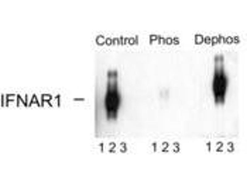 image for anti-Interferon (Alpha, beta and Omega) Receptor 1 (IFNAR1) (pSer535), (pSer539) antibody (ABIN228236)