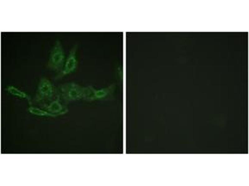 Immunofluorescence (IF) image for anti-B-Cell CLL/lymphoma 2 (BCL2) (AA 46-95) antibody (ABIN1532505)