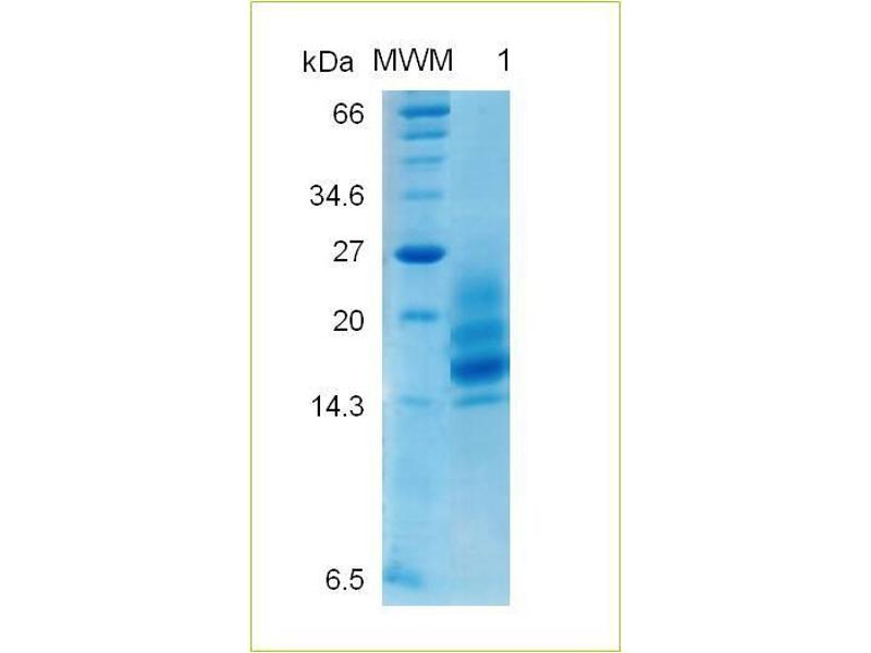 image for Colony Stimulating Factor 2 (Granulocyte-Macrophage) (CSF2) (AA 8-144) protein (ABIN1019699)