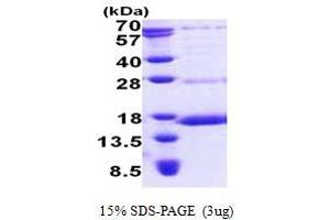 Image no. 1 for NADH Dehydrogenase (Ubiquinone) Fe-S Protein 6, 13kDa (NADH-Coenzyme Q Reductase) (NDUFS6) (AA 28-124) protein (His tag) (ABIN5853085)