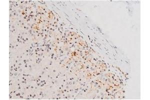 Image no. 10 for anti-Mitogen-Activated Protein Kinase 8 (MAPK8) (pThr183), (pTyr185) antibody (ABIN6255620)