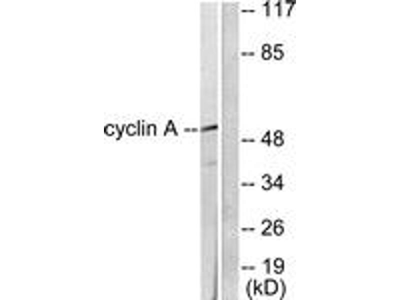 Western Blotting (WB) image for anti-Cyclin A antibody (Cyclin A2) (ABIN1533247)
