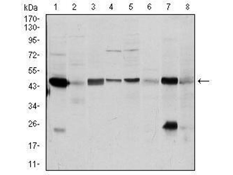Western Blotting (WB) image for anti-Argininosuccinate Synthase 1 (ASS1) antibody (ABIN4880550)