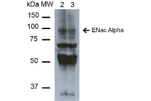 Image no. 3 for anti-Sodium Channel, Nonvoltage-Gated 1 alpha (SCNN1A) (AA 46-68) antibody (PerCP) (ABIN5066872)