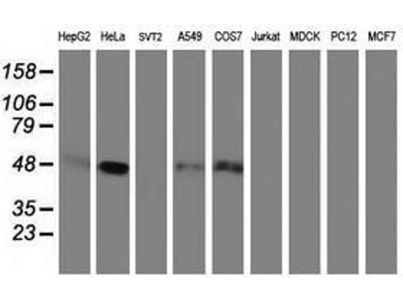 image for anti-serpin Peptidase Inhibitor, Clade E (Nexin, Plasminogen Activator Inhibitor Type 1), Member 1 (SERPINE1) antibody (ABIN1499717)