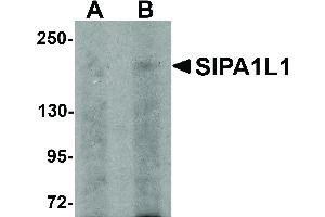 Image no. 1 for anti-Signal-Induced Proliferation-Associated 1 Like 1 (SIPA1L1) (N-Term) antibody (ABIN6657196)