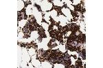 Immunohistochemistry (Paraffin-embedded Sections) (IHC (p)) image for anti-Ficolin (Collagen/fibrinogen Domain Containing) 1 (FCN1) antibody (ABIN4311880)