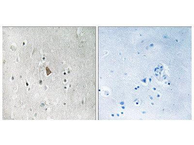 Immunohistochemistry (IHC) image for anti-Insulin-Like Growth Factor 1 Receptor (IGF1R) (C-Term), (pTyr1346), (pTyr1349), (pTyr1352) antibody (ABIN1847558)