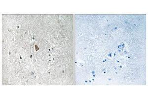 Immunohistochemistry (IHC) image for anti-IGF1R antibody (Insulin-Like Growth Factor 1 Receptor) (C-Term) (ABIN1847558)