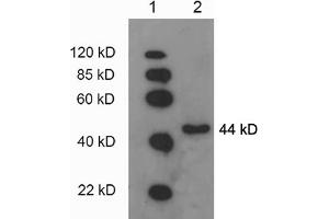 Western Blotting (WB) image for anti-Phosphoglycerate Kinase 1 (PGK1) antibody (ABIN1573990)