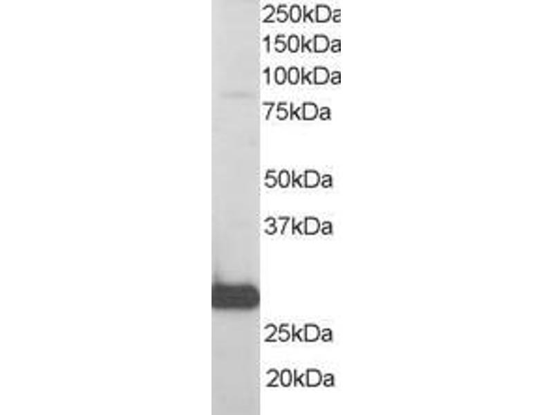 Western Blotting (WB) image for anti-RANBP1 antibody (RAN Binding Protein 1) (ABIN185257)