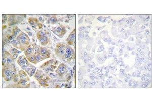 Image no. 1 for anti-Integrin beta 4 (ITGB4) (Tyr1510) antibody (ABIN1848054)