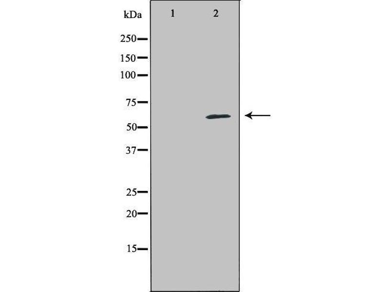 Western Blotting (WB) image for anti-Perforin 1 (Pore Forming Protein) (PRF1) antibody (ABIN6264417)