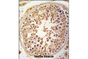 Image no. 1 for anti-Sperm Associated Antigen 9 (SPAG9) (AA 91-120), (N-Term) antibody (ABIN5533437)