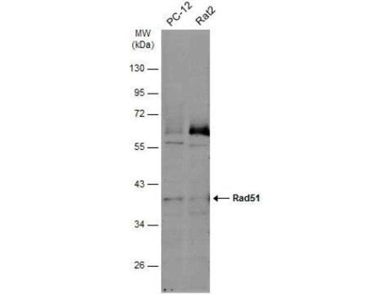 Western Blotting (WB) image for anti-DNA Repair Protein Homolog 1 (RAD51) antibody (ABIN151080)
