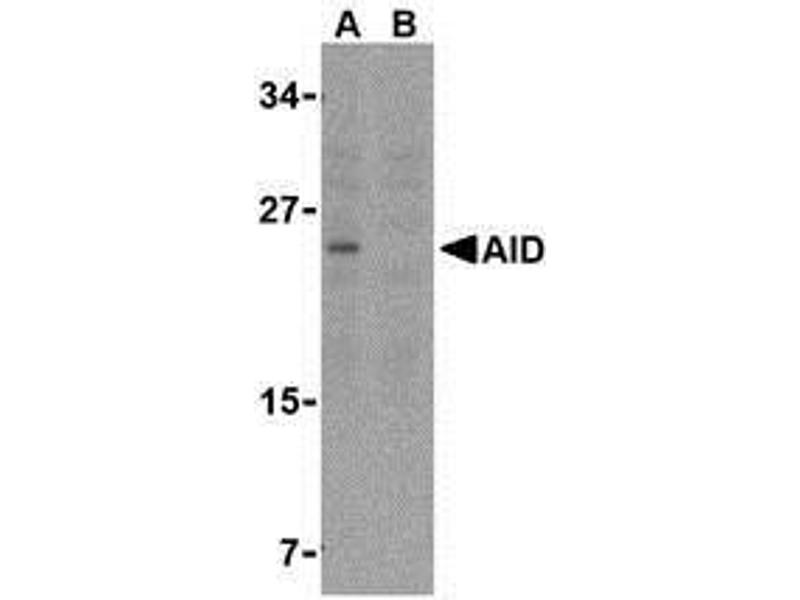 Western Blotting (WB) image for anti-AICDA antibody (Activation-Induced Cytidine Deaminase) (C-Term) (ABIN499233)