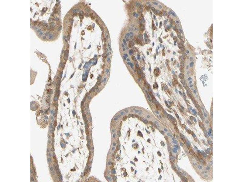 Immunohistochemistry (Paraffin-embedded Sections) (IHC (p)) image for anti-IKBKG antibody (Inhibitor of kappa Light Polypeptide Gene Enhancer in B-Cells, Kinase gamma) (ABIN4324314)