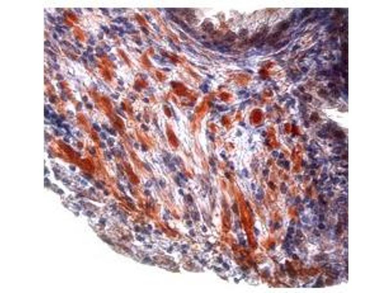 Immunohistochemistry (IHC) image for anti-TGFB1 antibody (Transforming Growth Factor, beta 1) (Middle Region) (ABIN2780306)