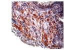 Immunohistochemistry (IHC) image for anti-Transforming Growth Factor, beta 1 (TGFB1) (Middle Region) antibody (ABIN2780306)