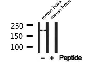 Image no. 1 for anti-Transient Receptor Potential Cation Channel, Subfamily M, Member 2 (TRPM2) antibody (ABIN6265756)