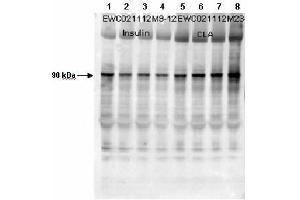 Image no. 2 for anti-Glycogen Synthase 1 (Muscle) (GYS1) (pSer640) antibody (ABIN99926)