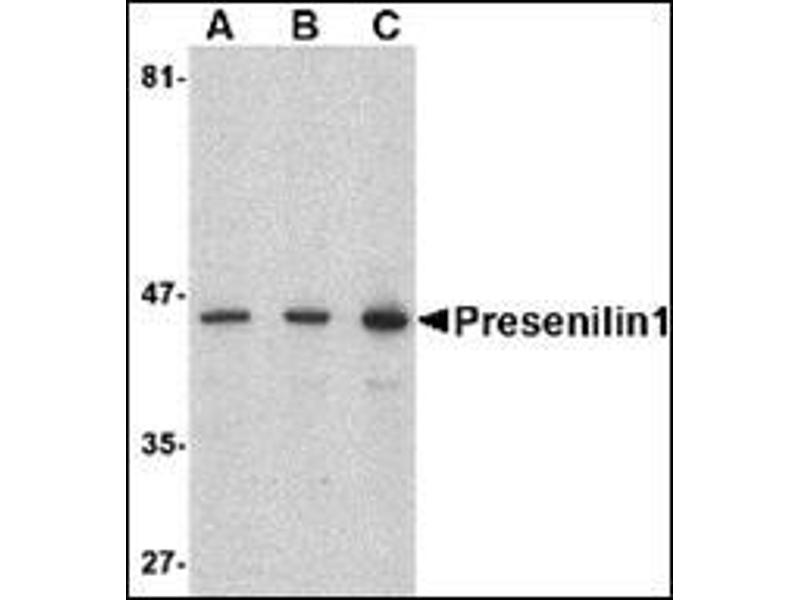 Western Blotting (WB) image for anti-Presenilin 1 antibody (PSEN1) (C-Term) (ABIN500539)