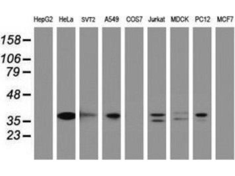 Immunohistochemistry (IHC) image for anti-C-JUN antibody (Jun Proto-Oncogene) (ABIN4285661)
