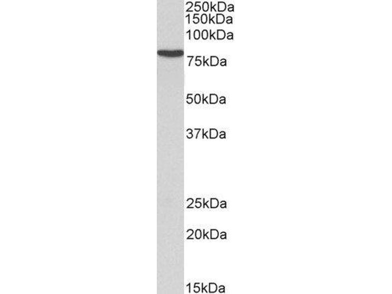 Western Blotting (WB) image for anti-Ribosomal Protein S6 Kinase, 90kDa, Polypeptide 2 (RPS6KA2) (C-Term) antibody (ABIN2559777)