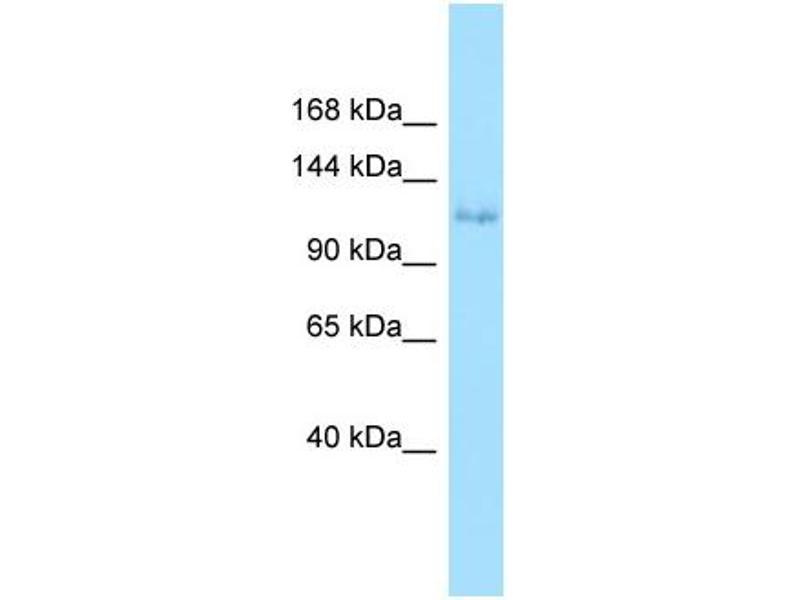Western Blotting (WB) image for anti-EPH Receptor A6 (Epha6) (N-Term) antibody (ABIN2790084)