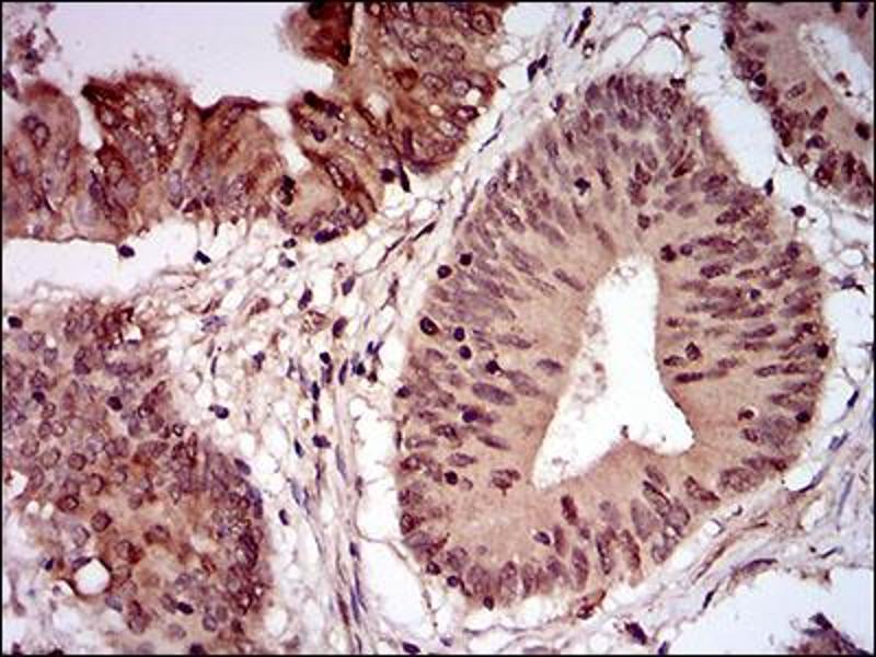 Image no. 1 for anti-Nibrin (NBN) (AA 467-615) antibody (ABIN1724942)