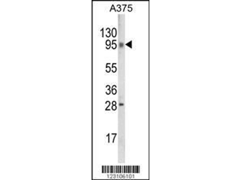 Western Blotting (WB) image for anti-Chromosome 6 Open Reading Frame 170 (C6ORF170) (AA 112-139), (N-Term) antibody (ABIN652966)