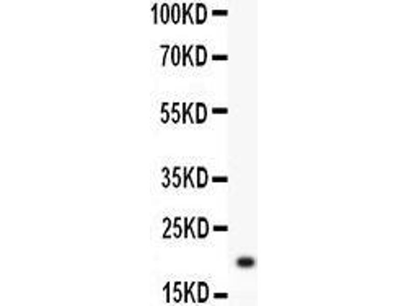 Western Blotting (WB) image for anti-HSPB1 antibody (Heat Shock 27kDa Protein 1) (AA 1-205) (ABIN3042464)