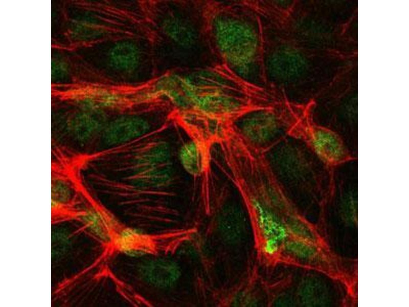 Immunofluorescence (IF) image for anti-Jun Proto-Oncogene (JUN) antibody (ABIN4880344)