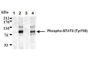 Western Blotting (WB) image for anti-Signal Transducer and Activator of Transcription 3 (Acute-Phase Response Factor) (STAT3) (AA 703-714), (pTyr705), (pTyr708) antibody (ABIN1449165)