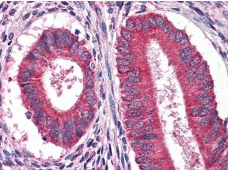 Immunohistochemistry (IHC) image for anti-Epidermal Growth Factor (EGF) antibody (ABIN1107061)