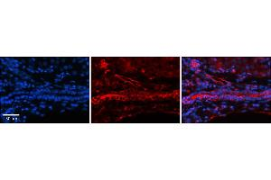Image no. 5 for anti-Folate Receptor 1 (Adult) (FOLR1) (Middle Region) antibody (ABIN2776804)