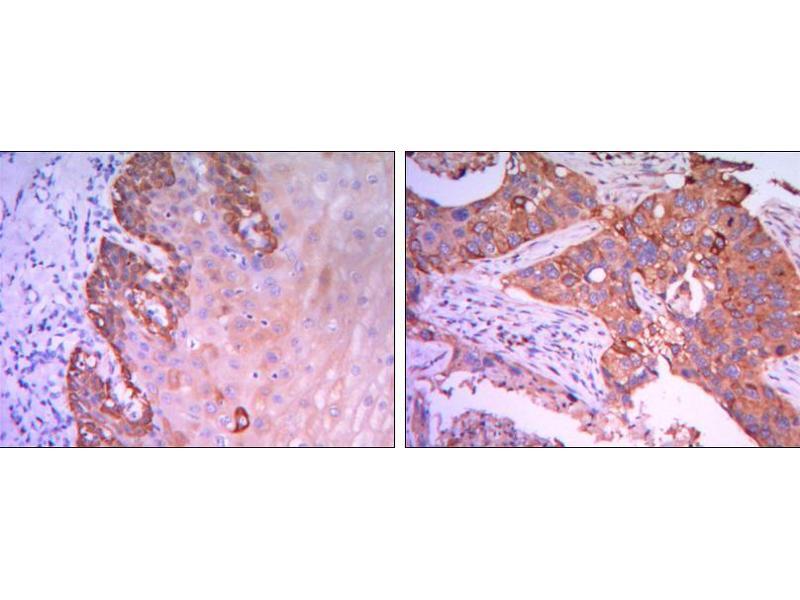 Immunohistochemistry (IHC) image for anti-RAB25, Member RAS Oncogene Family (RAB25) antibody (ABIN969377)