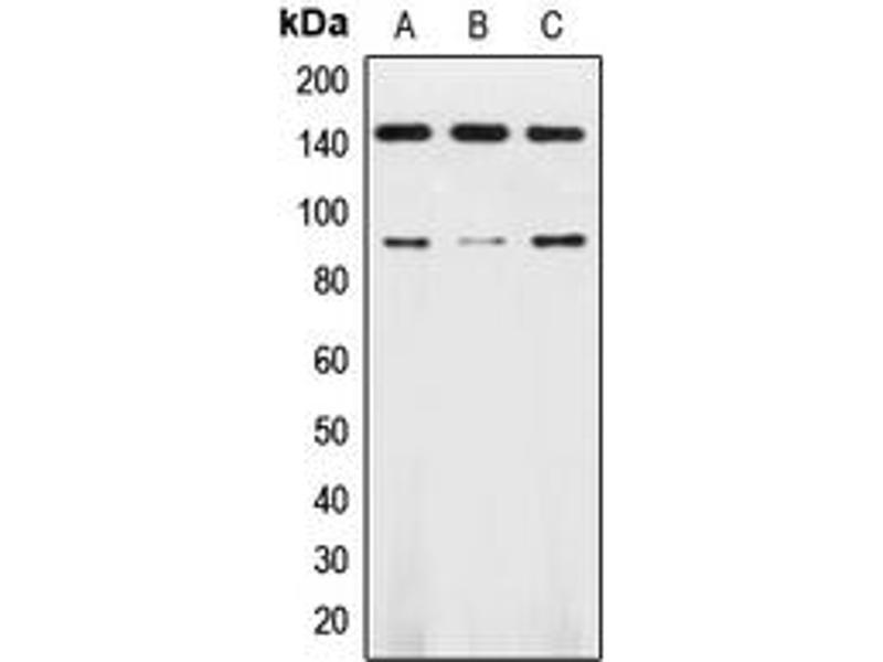 Western Blotting (WB) image for anti-TRKB antibody (Neurotrophic Tyrosine Kinase, Receptor, Type 2) (Center) (ABIN2707205)