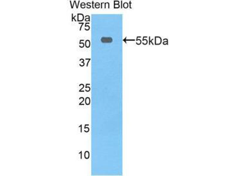 Western Blotting (WB) image for anti-Thymidine Phosphorylase (TYMP) (AA 33-290) antibody (ABIN1860842)